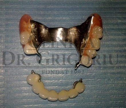 Edentatie biterminala maxilara 3