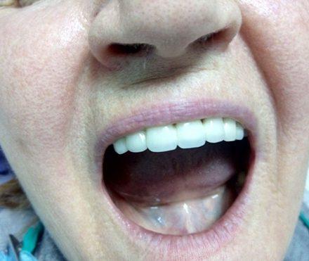 Edentatie subtotala maxilara 2