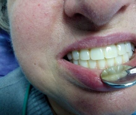 Supraprotezare ceramica pe cape de titan – maxilar si mandibula
